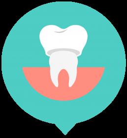 Specialised Dental Implants