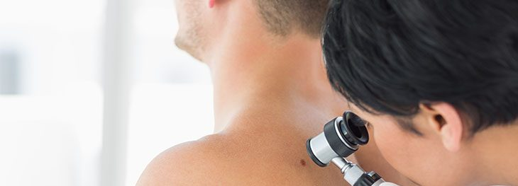 Check moles or unusual skin problems. We examine, diagnose and treat various skin ailments.